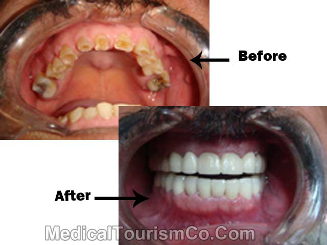 Prettau Zirconia Dental Work In Mexico Zirkonzahn Los